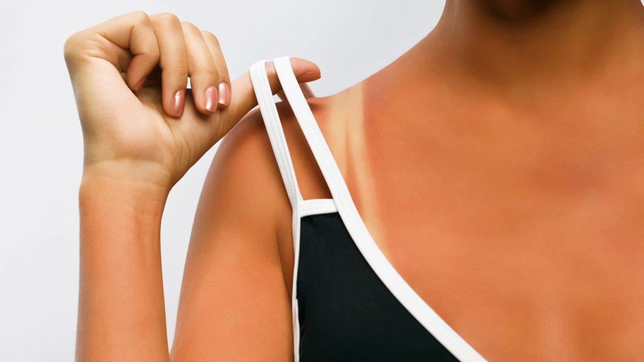 Vì sao da bị cháy nắng lại khó phục hồi?- Chuyên gia giải đáp
