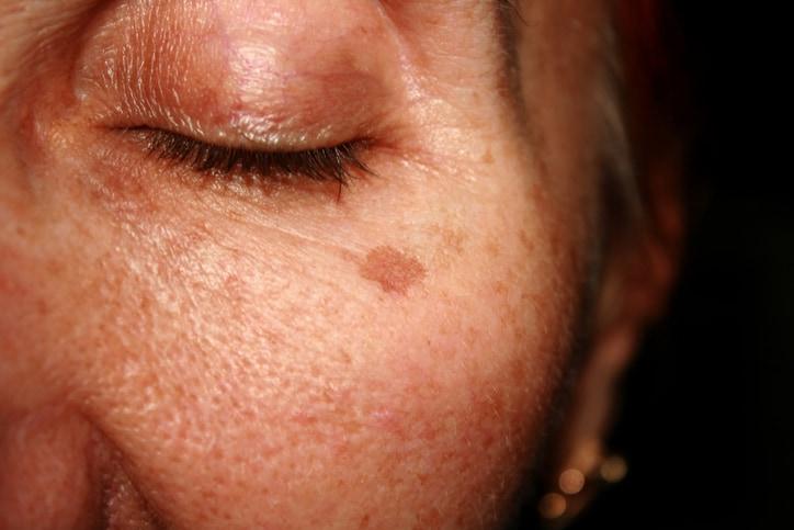 Phân biệt các trường hợp tăng sắc tố lành tính trên da