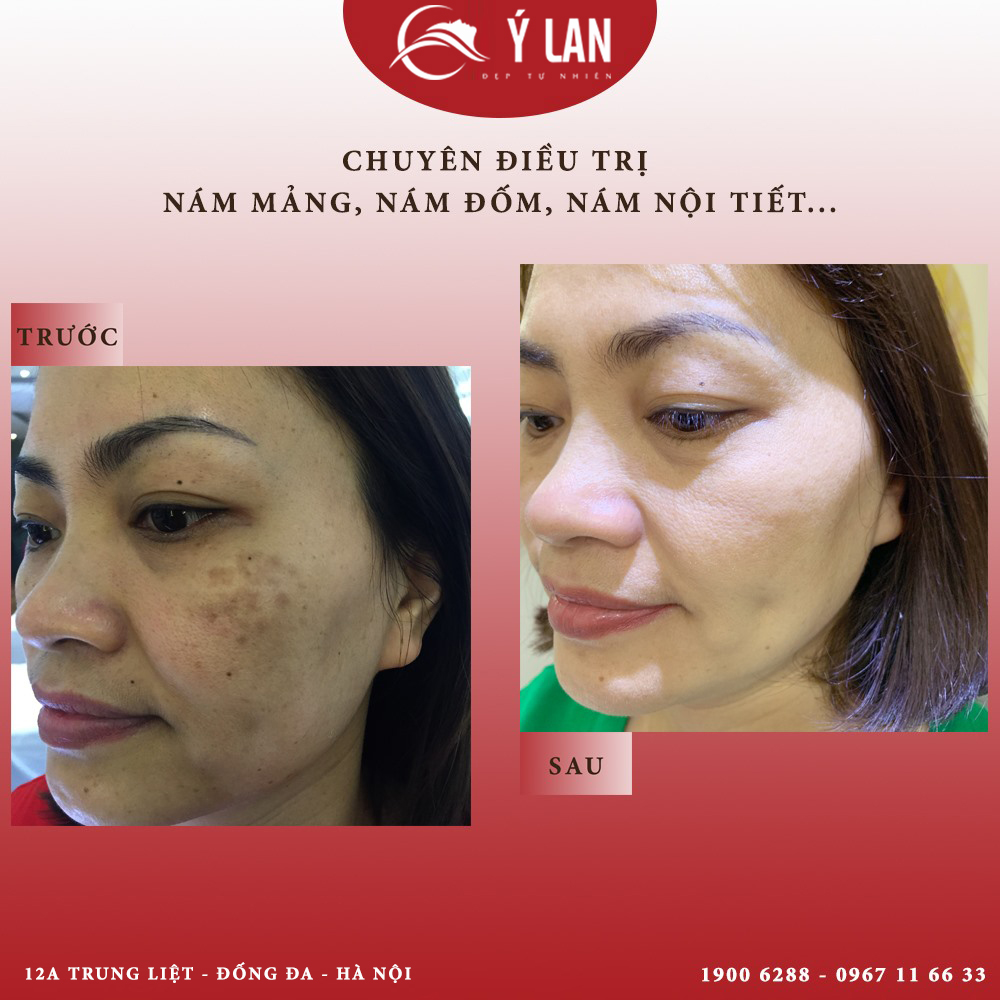 Mặt nạ trị nám da và tàn nhang nào là phù hợp, hiệu quả nhất?