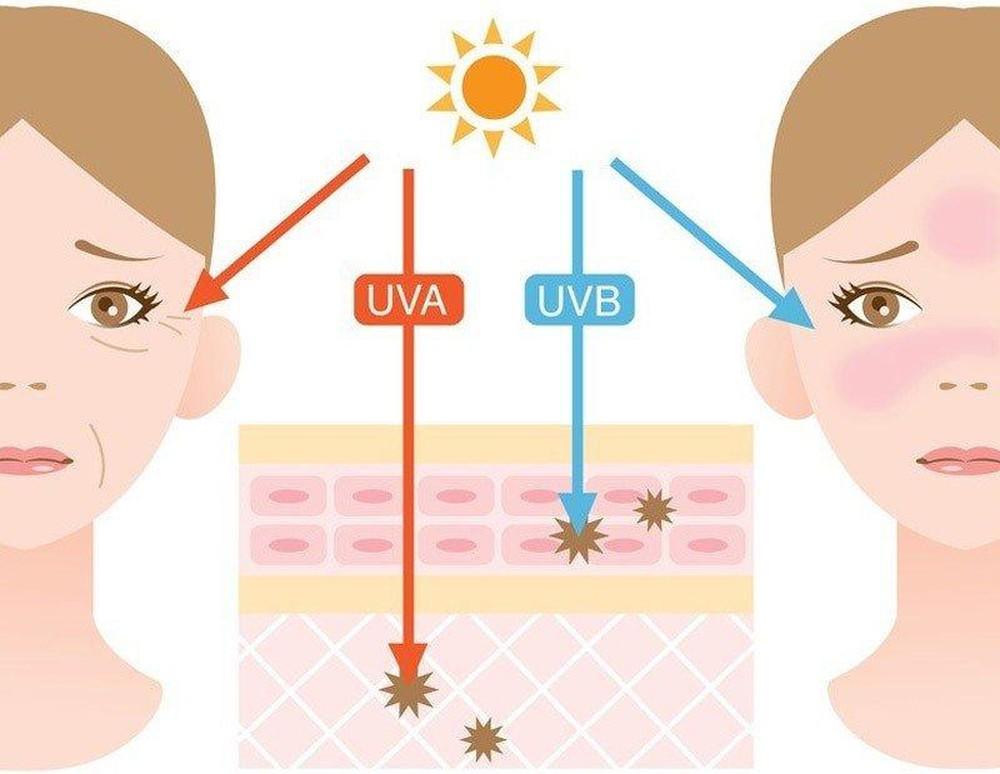 Những điều bạn chưa biết về nám da do ánh nắng mặt trời