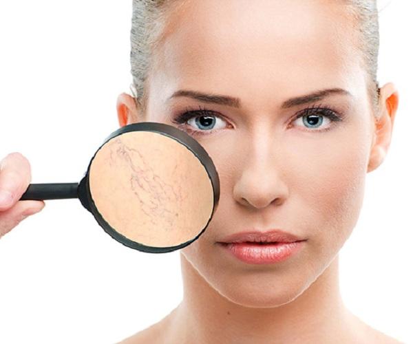 Da mặt bị giãn mao mạch có nguy hiểm không? cách nào khắc phục?