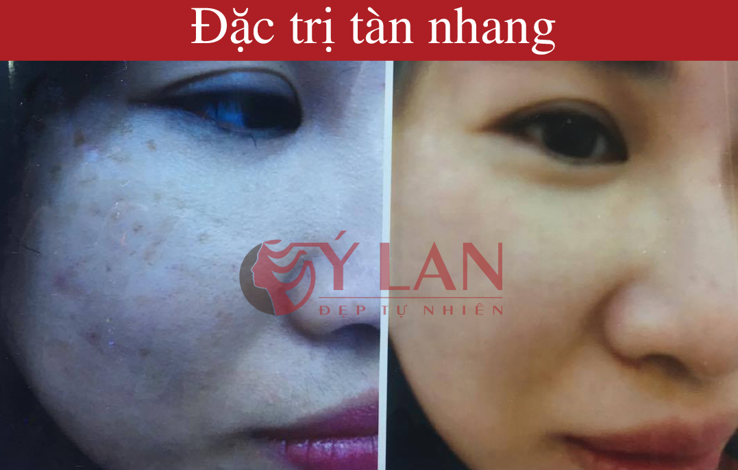 Bi_tan_nhang_do_bam_sinh_va_su_dung_my_pham_co_tri_duoc_khong?