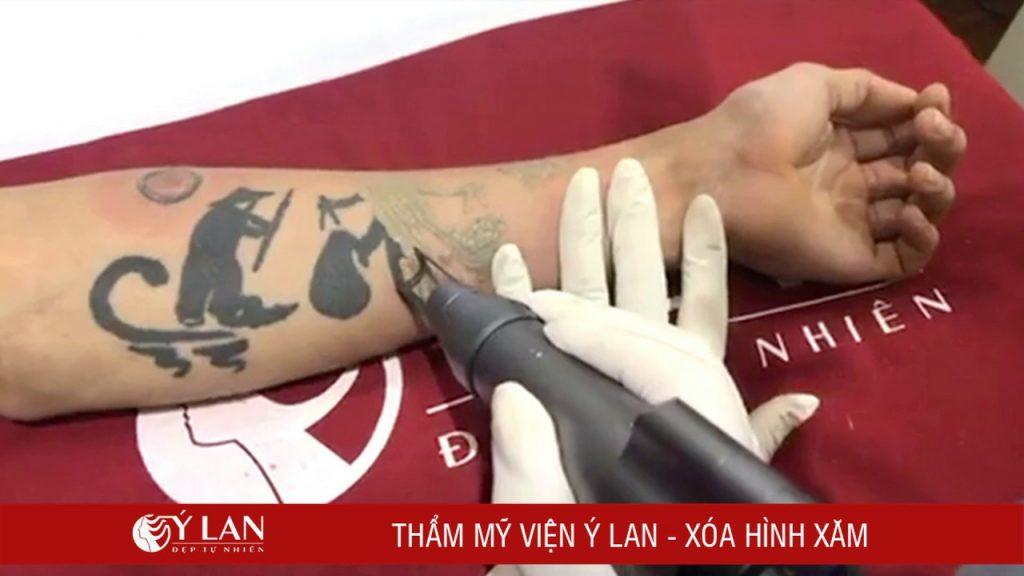 Xoa_Xam_May_An_Toan_Bang_Laser_Laser_Toning